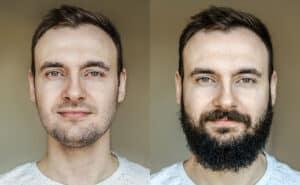 Bart schneller wachsen lassen